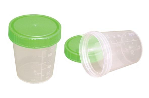 Urinbecher mit grünem Schraubdeckel